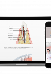 Implantate e-book